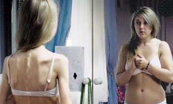 Anorexia e Bulemia